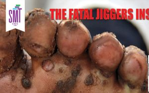 Eradicate Jiggers Insect Project
